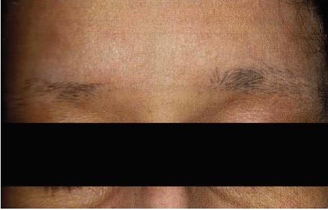 Choroby włosów i skóry